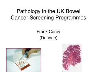 Pathology in the UK Bowel Cancer Screening Programmes