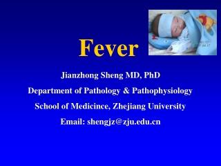 Fever of unknown origin FUO
