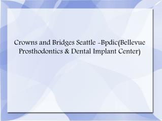 Crowns and Bridges Seattle, Prosthodontist Seattle - Bpdic