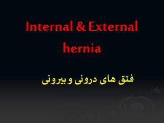 Internal & External hernia