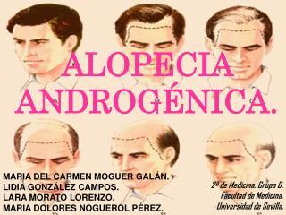 ALOPECIA ANDROGÉNICA.