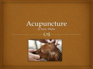 Acupuncture by Emily  Thielke
