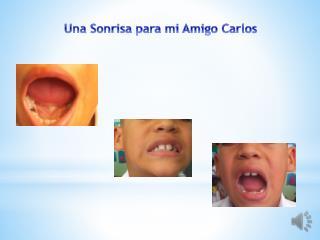 Una Sonrisa para mi Amigo Carlos
