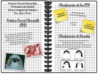 """Prótesis Parcial Removible. """"Principios de Diseño"""" Clínica Integral del Adulto I"""