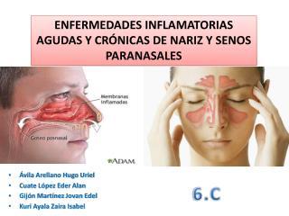ENFERMEDADES INFLAMATORIAS AGUDAS Y CRÓNICAS DE NARIZ Y SENOS PARANASALES