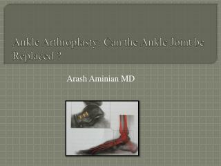 Ankle  Arthroplasty : Can the Ankle Joint be Replaced ?