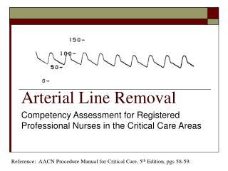 Arterial Line Removal