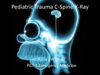 Pediatric Trauma C-Spine X-Ray