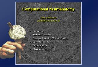 Computational Neuroanatomy John Ashburner john@fil.ion.ucl.ac.uk