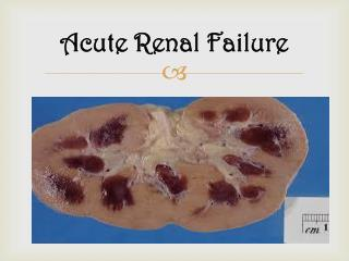 Acute Renal Failure