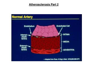 Atherosclerosis Part 2