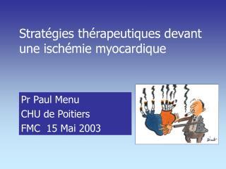 Stratégies thérapeutiques devant une ischémie myocardique