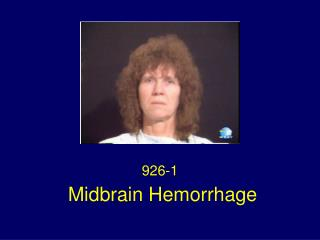Midbrain Hemorrhage