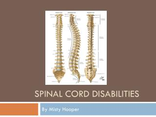 Spinal Cord Disabilities