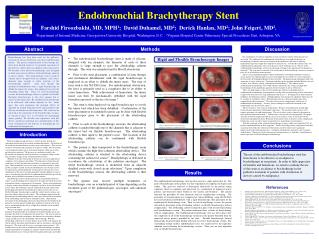 Endobronchial Brachytherapy Stent