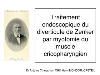 Traitement endoscopique du diverticule de Zenker par myotomie du muscle cricopharyngien