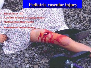 Pediatric vascular injury