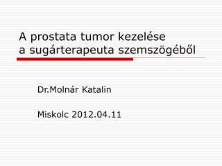 A prostata tumor kezelése a sugárterapeuta szemszögéből