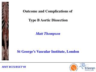 Outcome and Complications of  Type B Aortic Dissection Matt Thompson