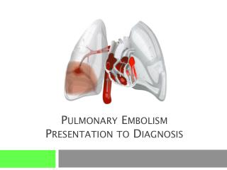 Pulmonary Embolism Presentation to Diagnosis