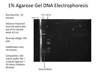 1% Agarose Gel DNA Electrophoresis