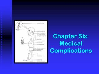 Chapter Six:  Medical Complications