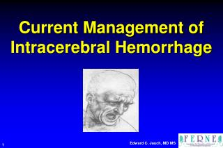 Current Management of  Intracerebral Hemorrhage