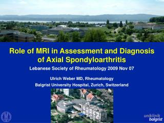 Role of MRI in Assessment and Diagnosis of Axial Spondyloarthritis