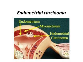 Endometrial carcinoma