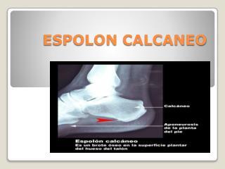 ESPOLON CALCANEO