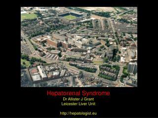 Hepatorenal Syndrome Dr Allister J Grant Leicester Liver Unit hepatologist.eu