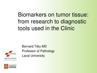 Biomarkers on tumor tissue:   from research to diagnostic tools used in the Clinic