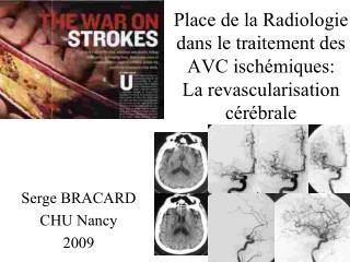 Place de la Radiologie dans le traitement des AVC isch miques: La revascularisation c r brale