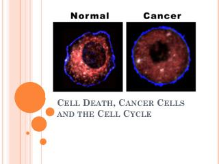 Cell Death, Cancer Cells and the Cell Cycle