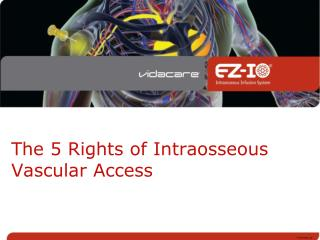 The 5 Rights of Intraosseous Vascular Access