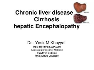 Chronic liver disease    Cirrhosis hepatic Encephalopathy