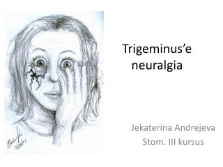 Trigeminus 'e  neuralgia