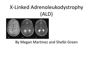 X-Linked  Adrenoleukodystrophy (ALD)