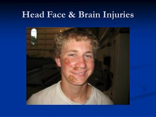 Head Face & Brain Injuries