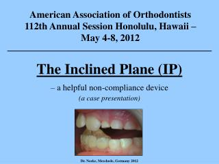 The Inclined Plane (IP) – a helpful non-compliance device (a case presentation)