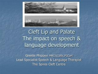 Cleft Lip and Palate The impact on speech & language development