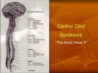 """Central Cord Syndrome """"The Arms Have It"""""""