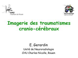 Imagerie des traumatismes cranio-cérébraux