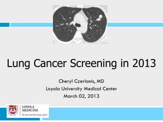 Lung Cancer Screening in 2013