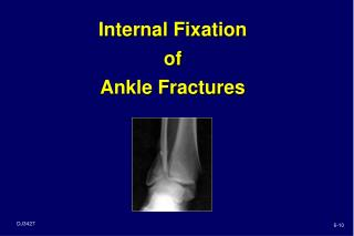 Internal Fixation  of  Ankle Fractures