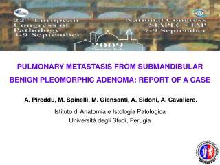 PULMONARY METASTASIS FROM SUBMANDIBULAR BENIGN PLEOMORPHIC ADENOMA: REPORT OF A CASE