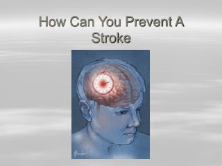 How Can You Prevent A Stroke