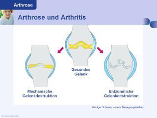 Rheuma Arthritis Arthrose