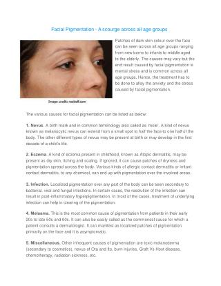 Facial Pigmentation – A scourge across all age groups