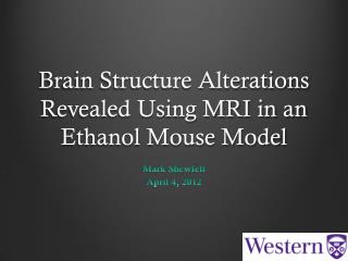 Brain Structure Alterations Revealed Using MRI in an Ethanol Mouse Model